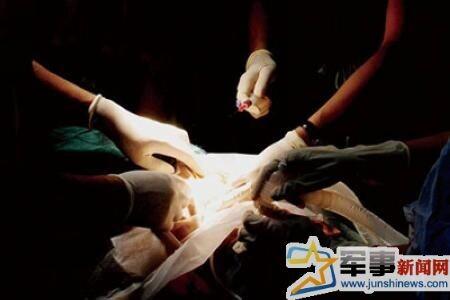美女死囚捐献器官被活体解剖现场图片