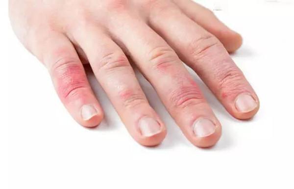 治疗冻疮最好最有效的办法 冻疮疤痕怎么消除能不能根治和预防 168看看网