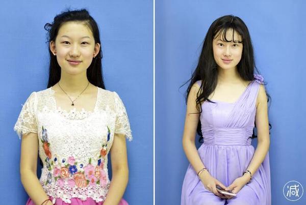 19岁青岛女孩李奕霏整容成刘亦菲图,李奕霏整容前后对比图好看吗