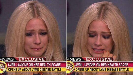 艾薇儿得莱姆病是什么病会死吗 莱姆病临床表现如何治疗能治好吗