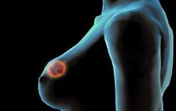 癌症的早期信号是什么如何预防癌症措施哪五种人注定得癌症揭秘