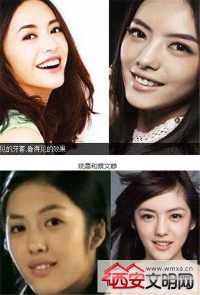 姬如雪蔡文静结婚了吗老公是谁?蔡文静为什么叫小姚晨长得很像吗