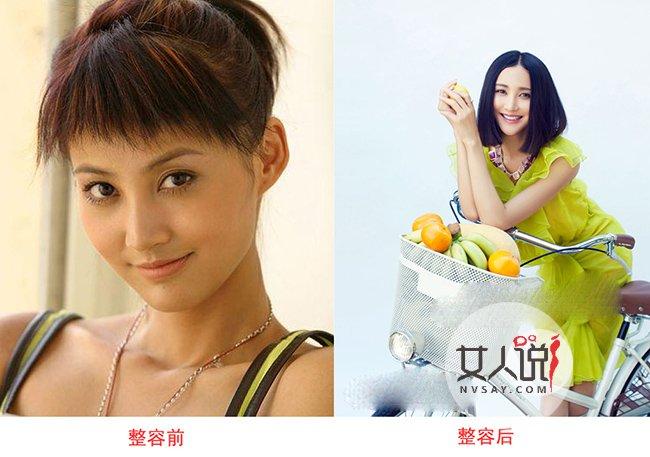 张歆艺整容前后照片被挖出惊呆网友 张歆艺睡遍北爱剧组事件始末