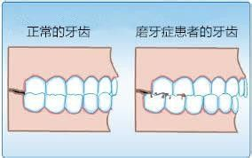 睡觉磨牙是什么原因 夜晚磨牙怎么治磨牙偏方咬橘子皮有效果吗