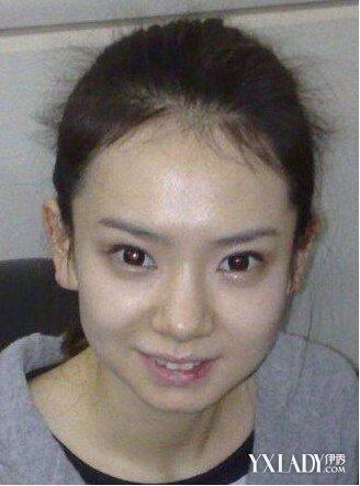戚薇整容前最丑的照片变化惊人 戚薇小时候的照片曝光是兔唇吗