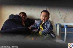 安徽1岁男童肚中取出3斤胎儿怎么回事,寄生胎能活下来吗存活案例