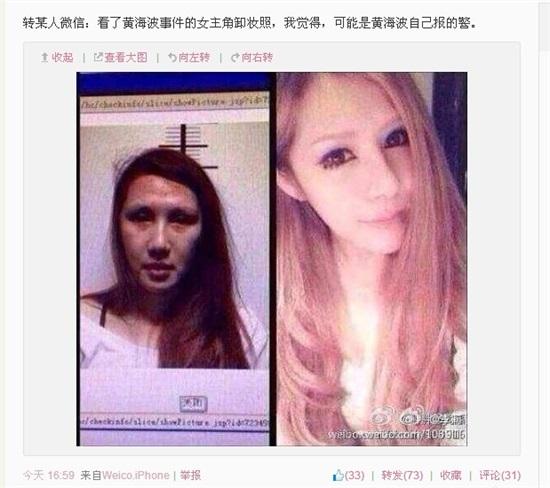 刘馨予变性手术前后照片
