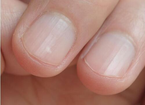指甲上白点是怎么回事原因 手指甲上有白点怎么治吃什么揭秘