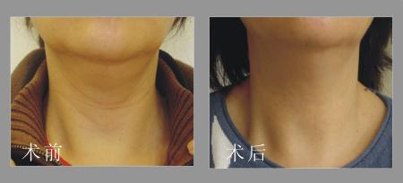 颈纹怎么形成的能消除吗是不是病 颈纹很深代表什么颈纹霜有用吗