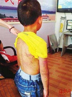 四岁半男孩被母亲刺伤烫伤血肉模糊,孩子恢复近况母亲脑子有病吗