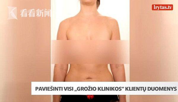 立陶宛整形医院遭黑海量客户裸照不堪入目,黑客是谁作案方法动机