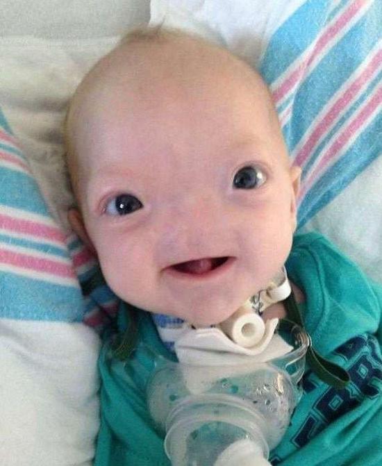 美国无鼻男童去世生前萌照震撼心酸,无鼻症怎么造成的靠什么呼吸