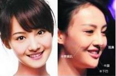 郑爽整容疤痕明显照片对比曝光 杨洋郑爽公开恋情机场吻照流出