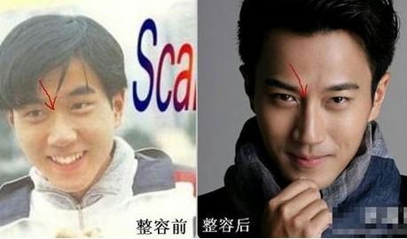 刘恺威整容前后照片对比曝光 杨幂和刘恺威半夜吵架现场照片遭扒