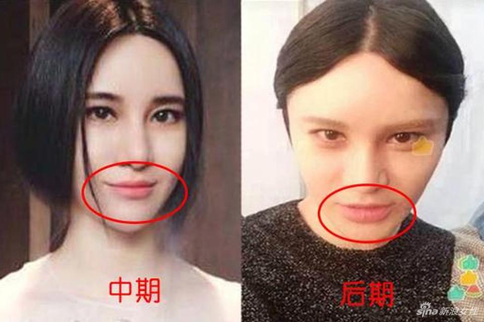 尚雯婕整容前后照片对比曝光 尚雯婕整的像僵尸一样原因内幕揭秘