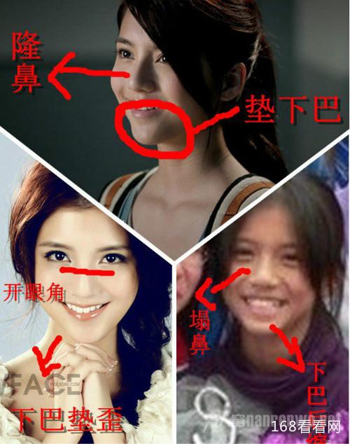 吴千语整容前后照片对比惊人 林峰吴千语为什么分手真实原因揭秘