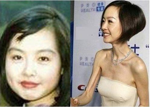 韩D奶女星李泰林减肥致失聪原因, 女星过度减肥越变越丑对比图