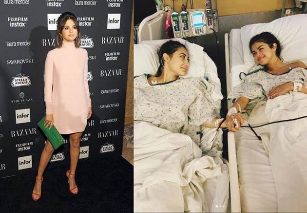 赛琳娜红斑狼疮中风治不好了吗 赛琳娜接受闺蜜肾移植手术疤痕照