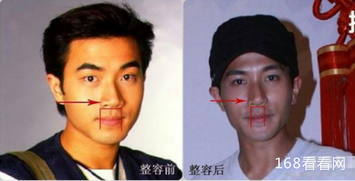 刘恺威整容前后照片对比惊人 刘恺威出轨王鸥事件幕后真相揭秘